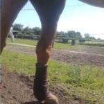 Il tendine d'Achille strappato e di conseguenza il bacino gravemente fuori equilibrio